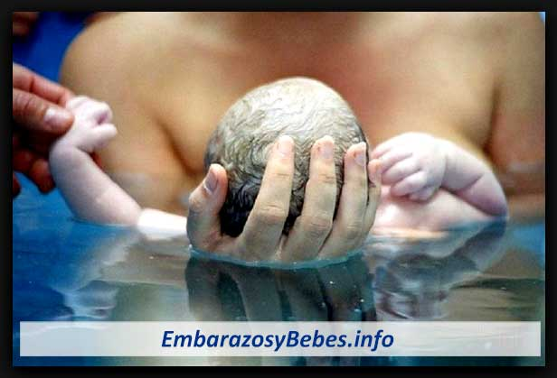 parto en el agua beneficios