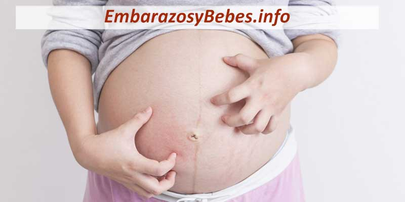 Colestasis del Embarazo