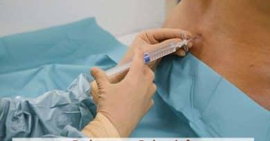 ¿Anestesia Epidural o Parto Natural?