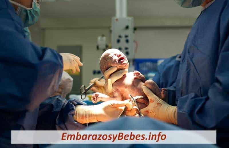 Bebés Nacidos por Cesárea