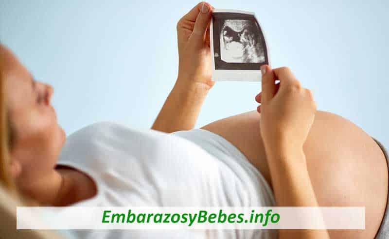 ecocardiograma fetal