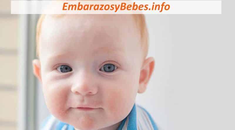 dermatitis atopica en bebes