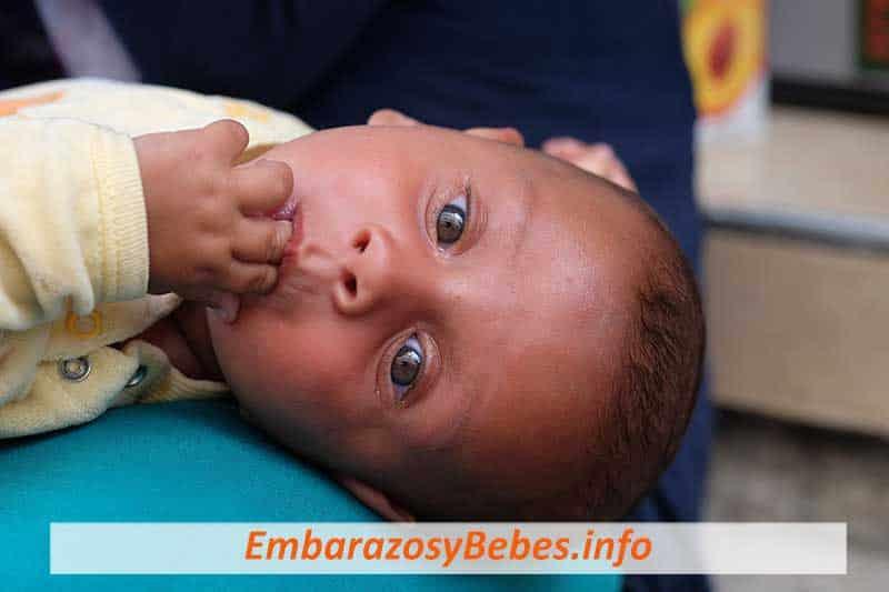Conjuntivitis en Bebés Recién Nacidos